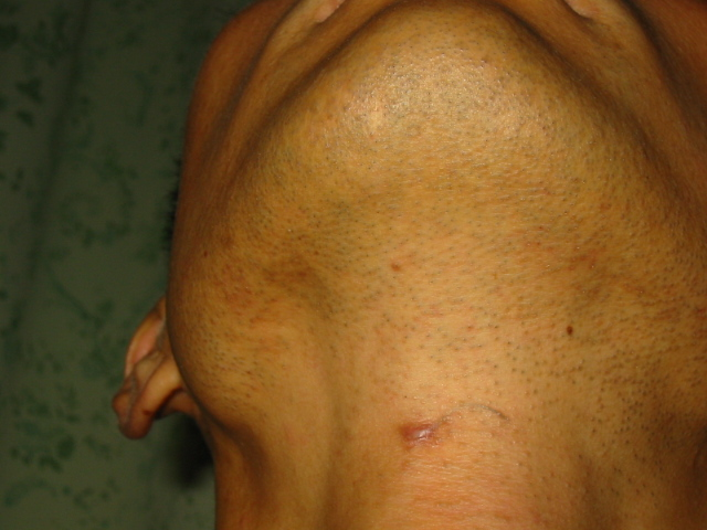 Pilonidal Cyst Related...